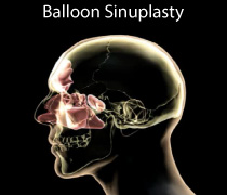 Balloon Sinuplasty